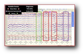 EEG Interpretation